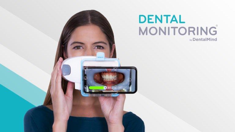 Vorteile - Dental Monitoring