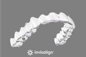 Die Alternative zur Zahnspange